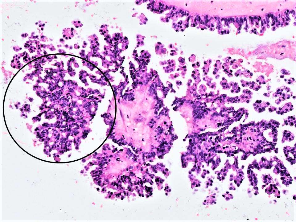 Micropapillary SBT