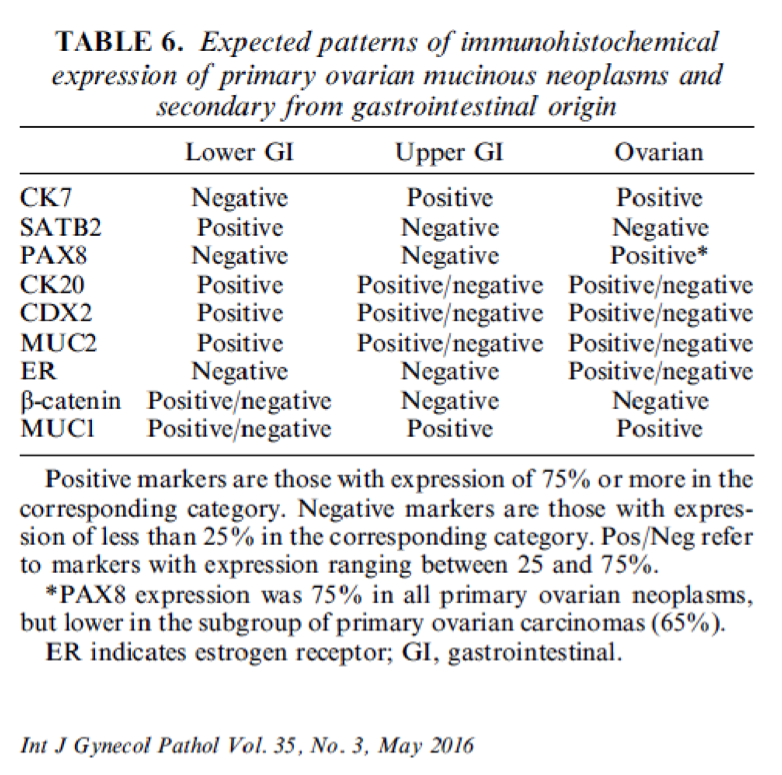 Pathology Outlines Colorectal Adenocarcinoma