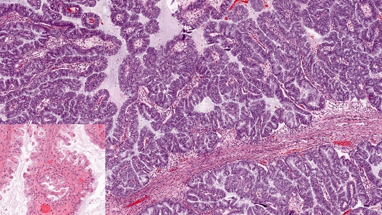 Seromucinous borderline tumor