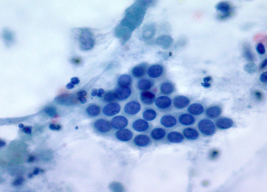 Ductal cells with bland nuclei