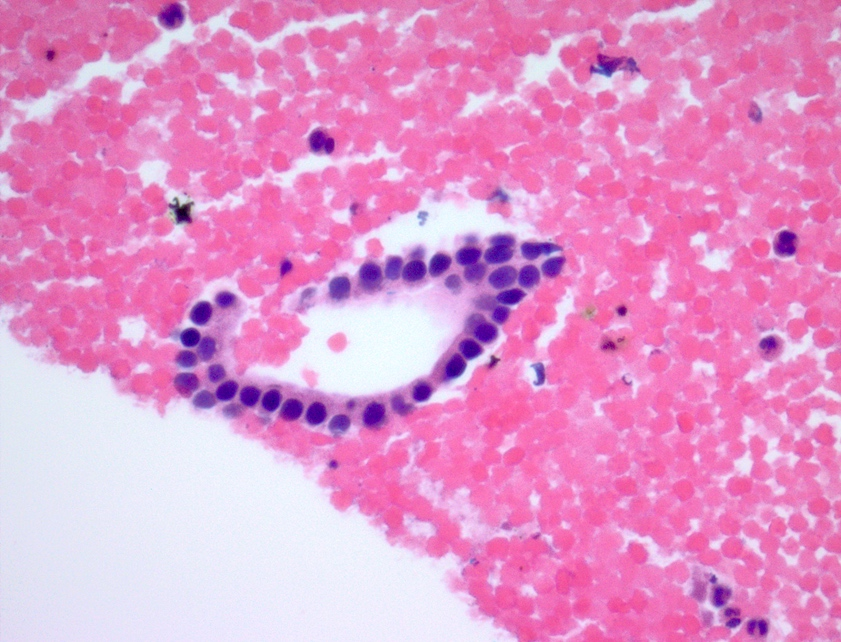 Ductal epithelium cell block