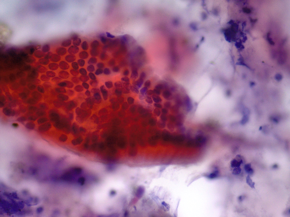 Gastric epithelium