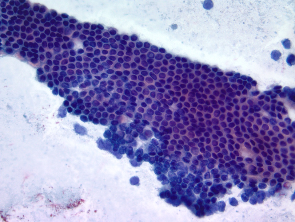 Duodenal epithelium with goblet cells