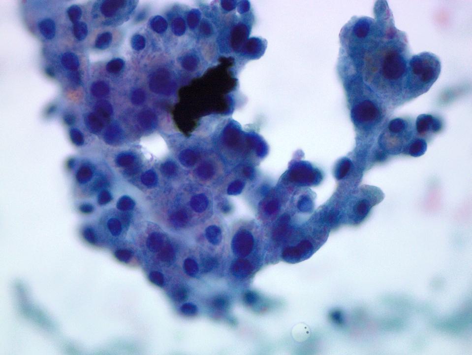 Hepatocytes with bile