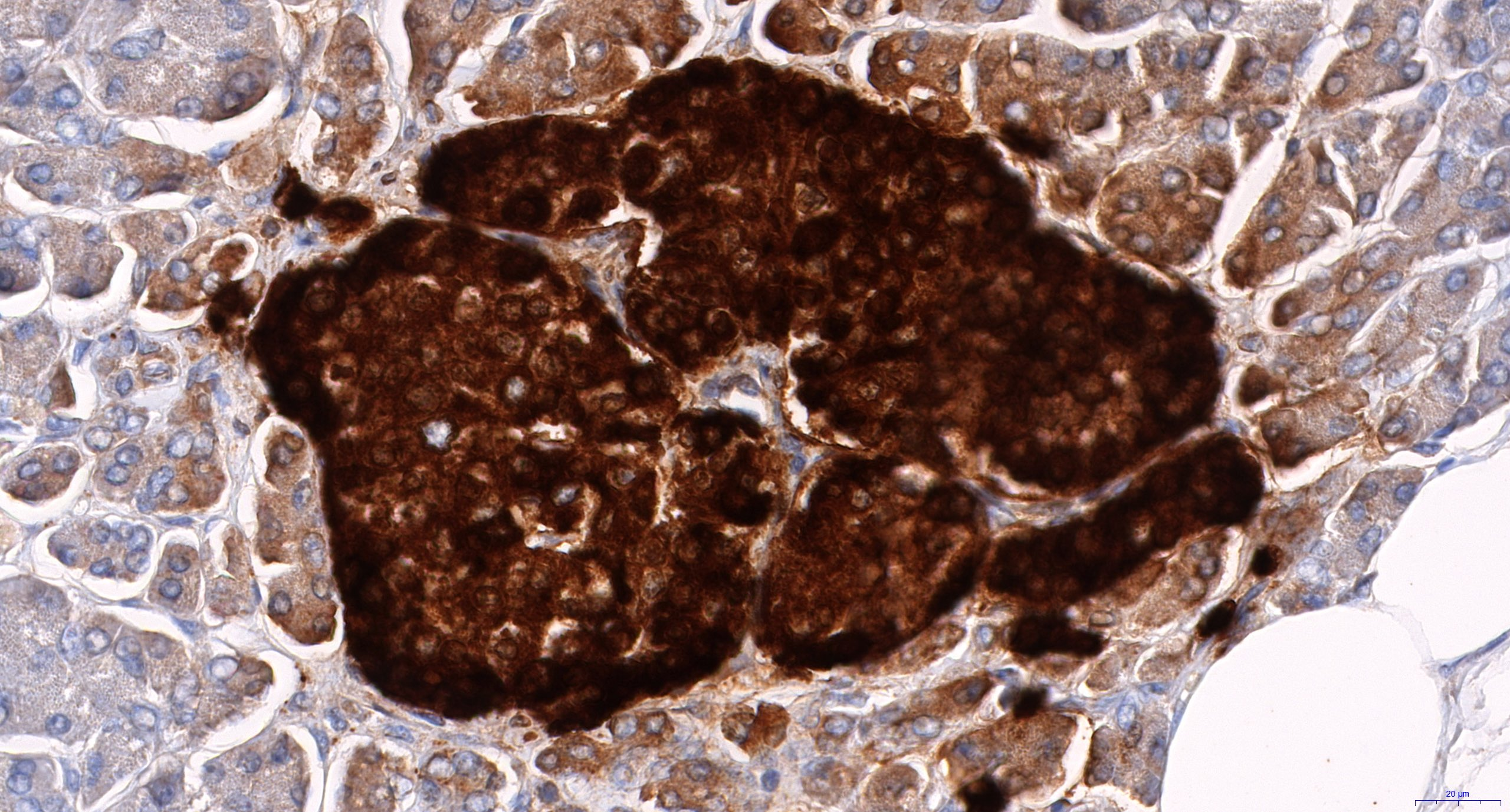 Chromogranin A IHC detail