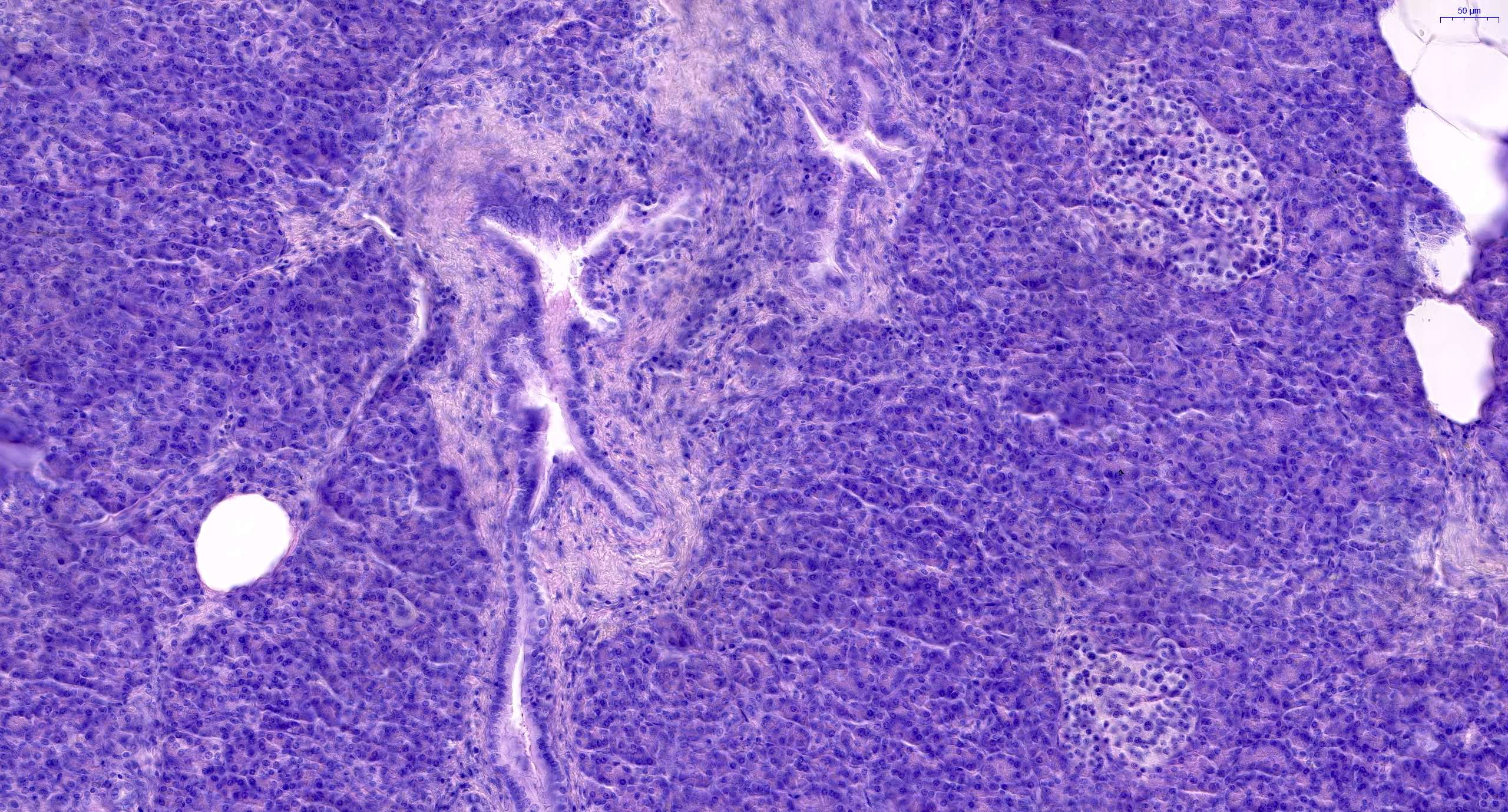Normal pancreas histology