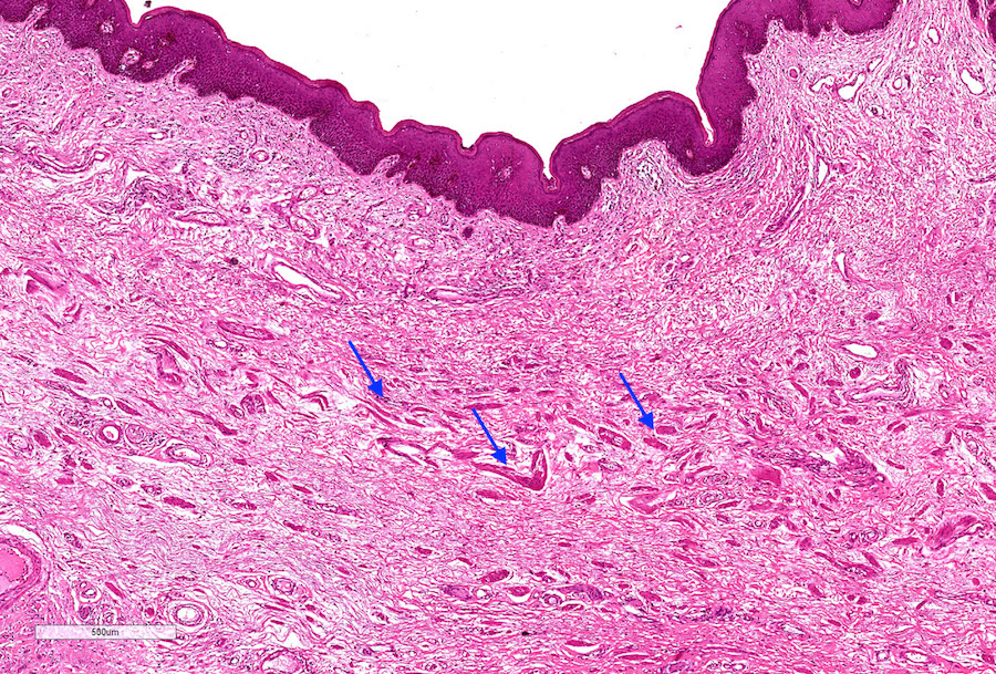 Foreskin epithelium
