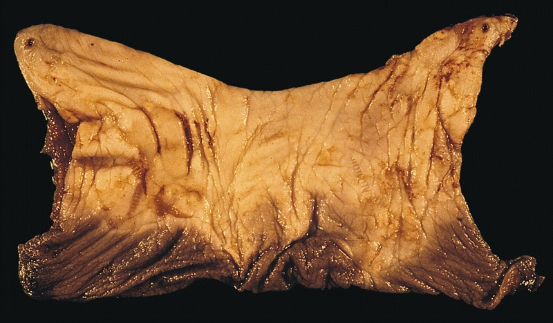 Mucosal and wrinkled portion of foreskin