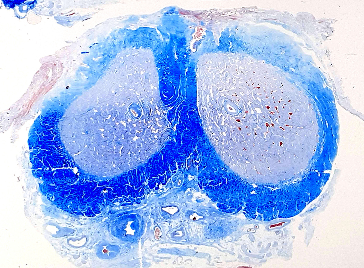 Surgical margin connective tissue