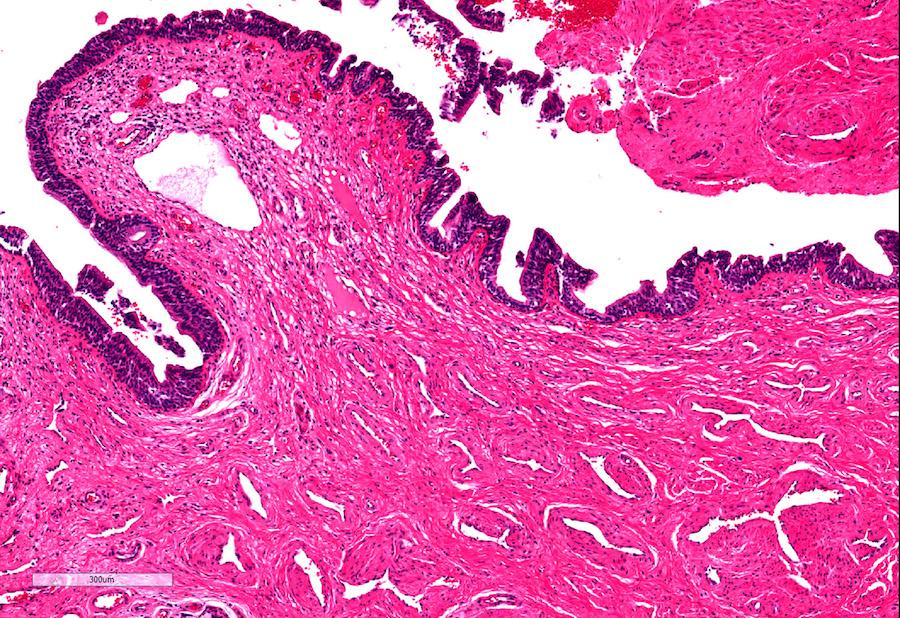 Penile urethra