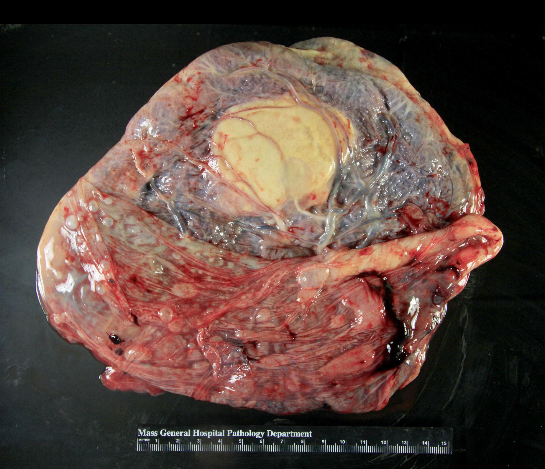 Infarcted large chorangioma