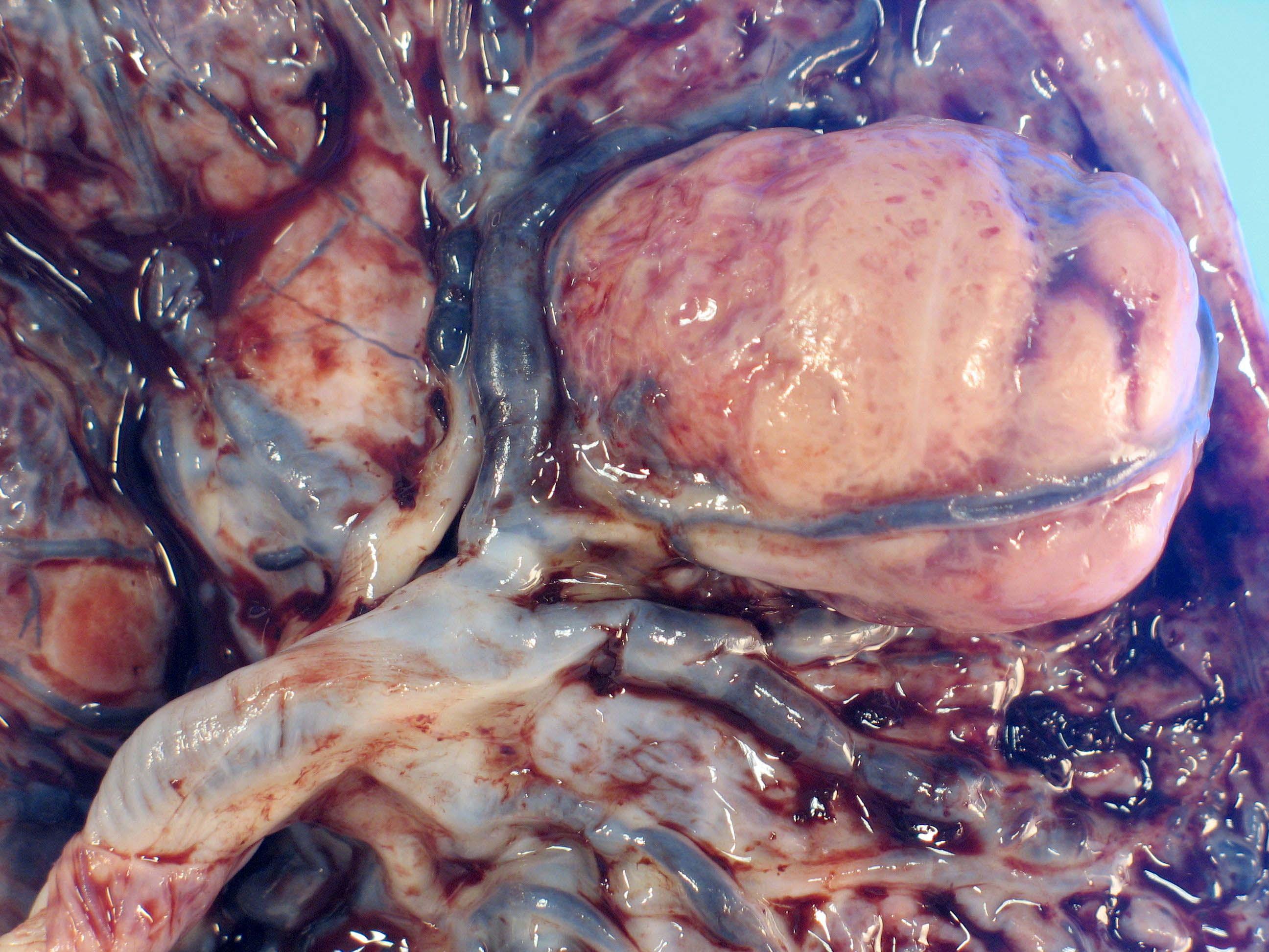Large chorangioma