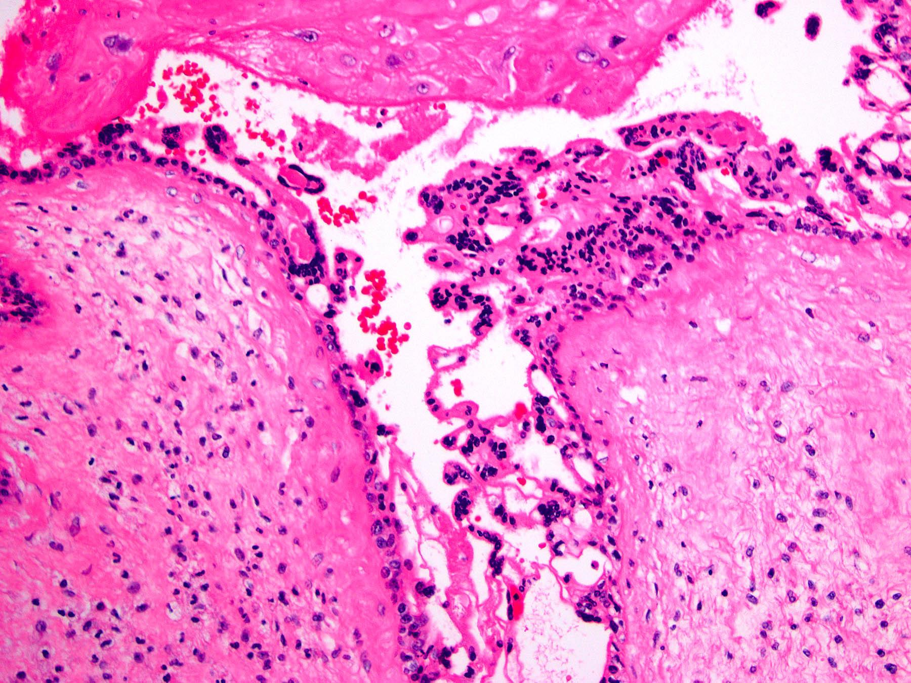 Trophoblast hyperplasia