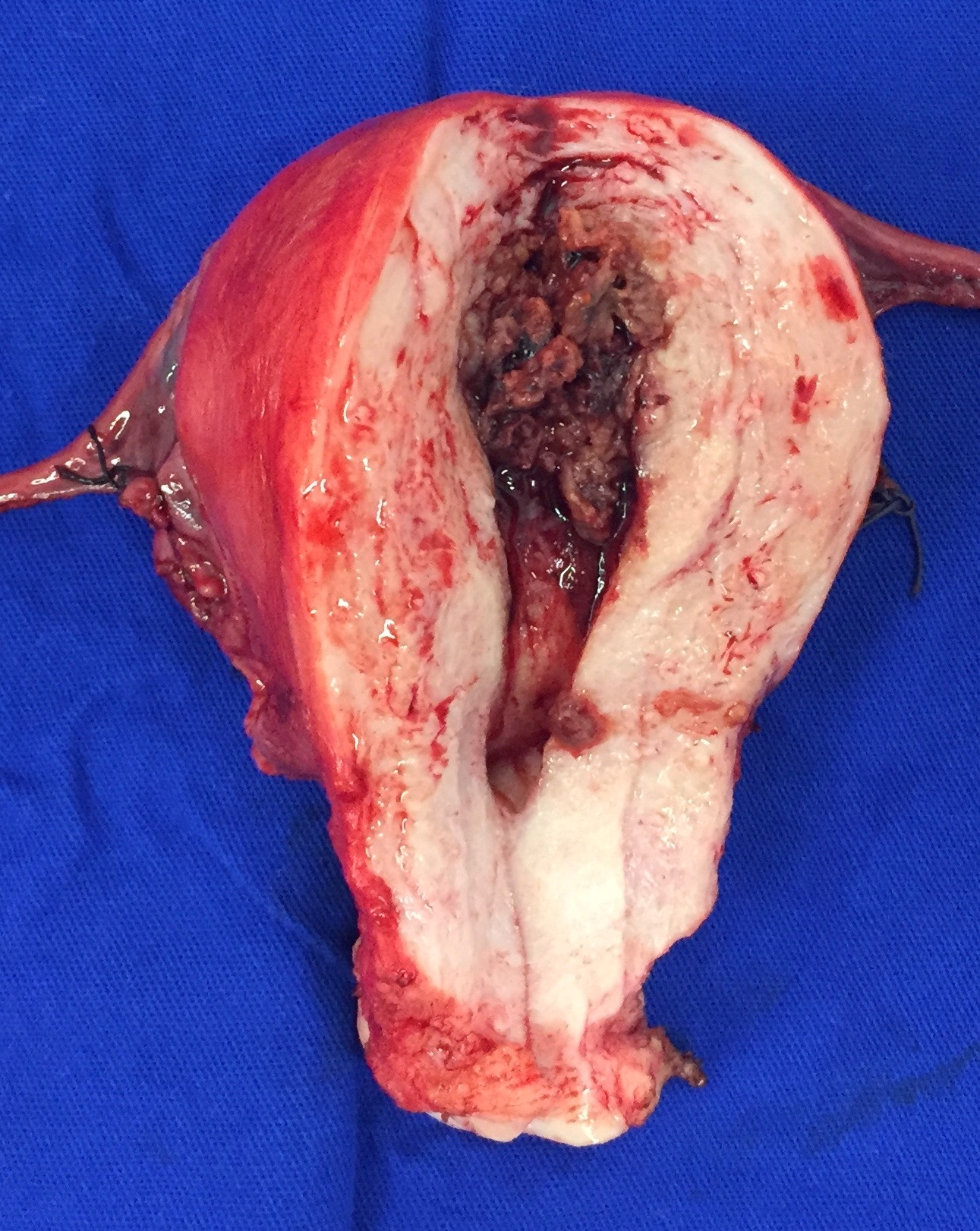 Uterine tumor