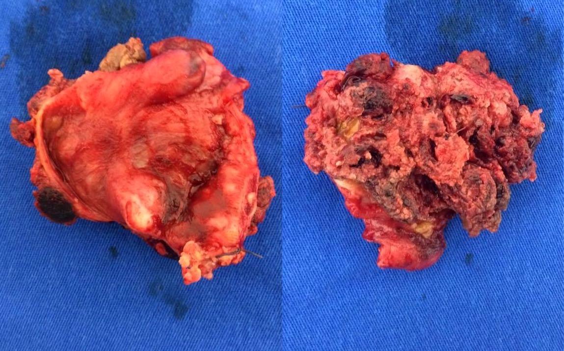 Tubal tumor