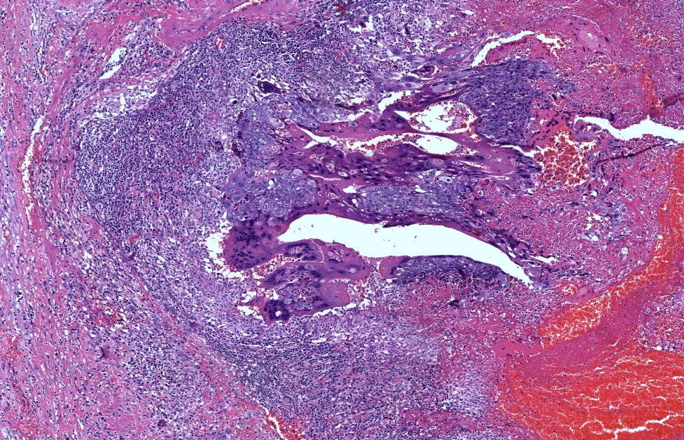 Solid tumor without chorionic villi