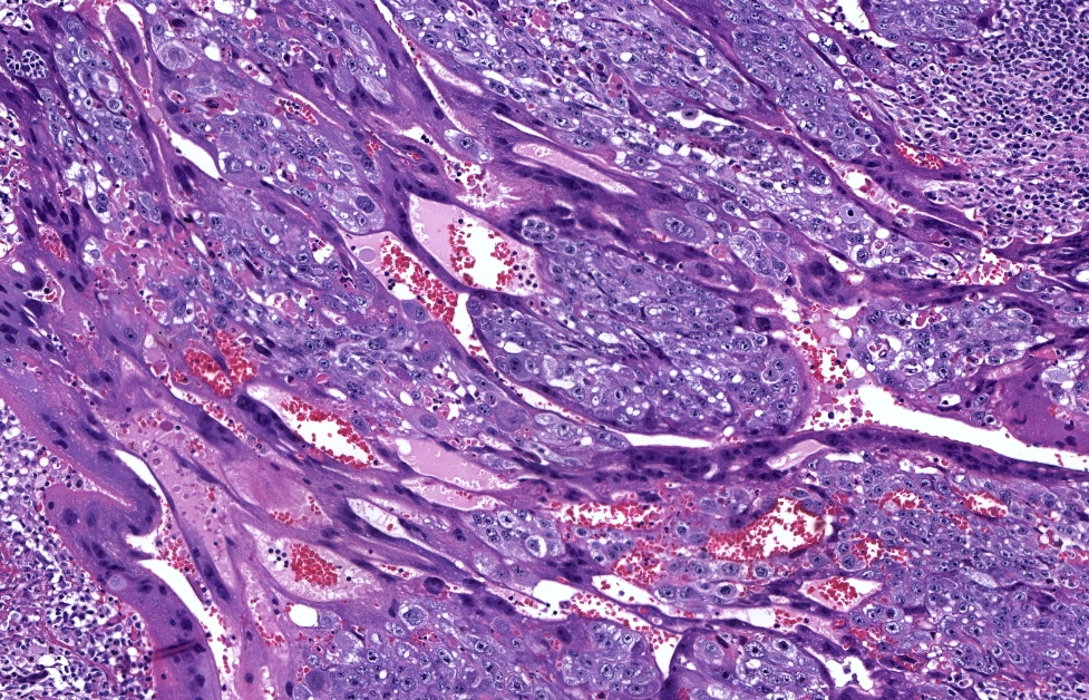 Triphasic neoplasm