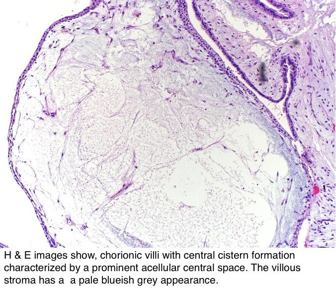 Pathology Outlines - Complete mole