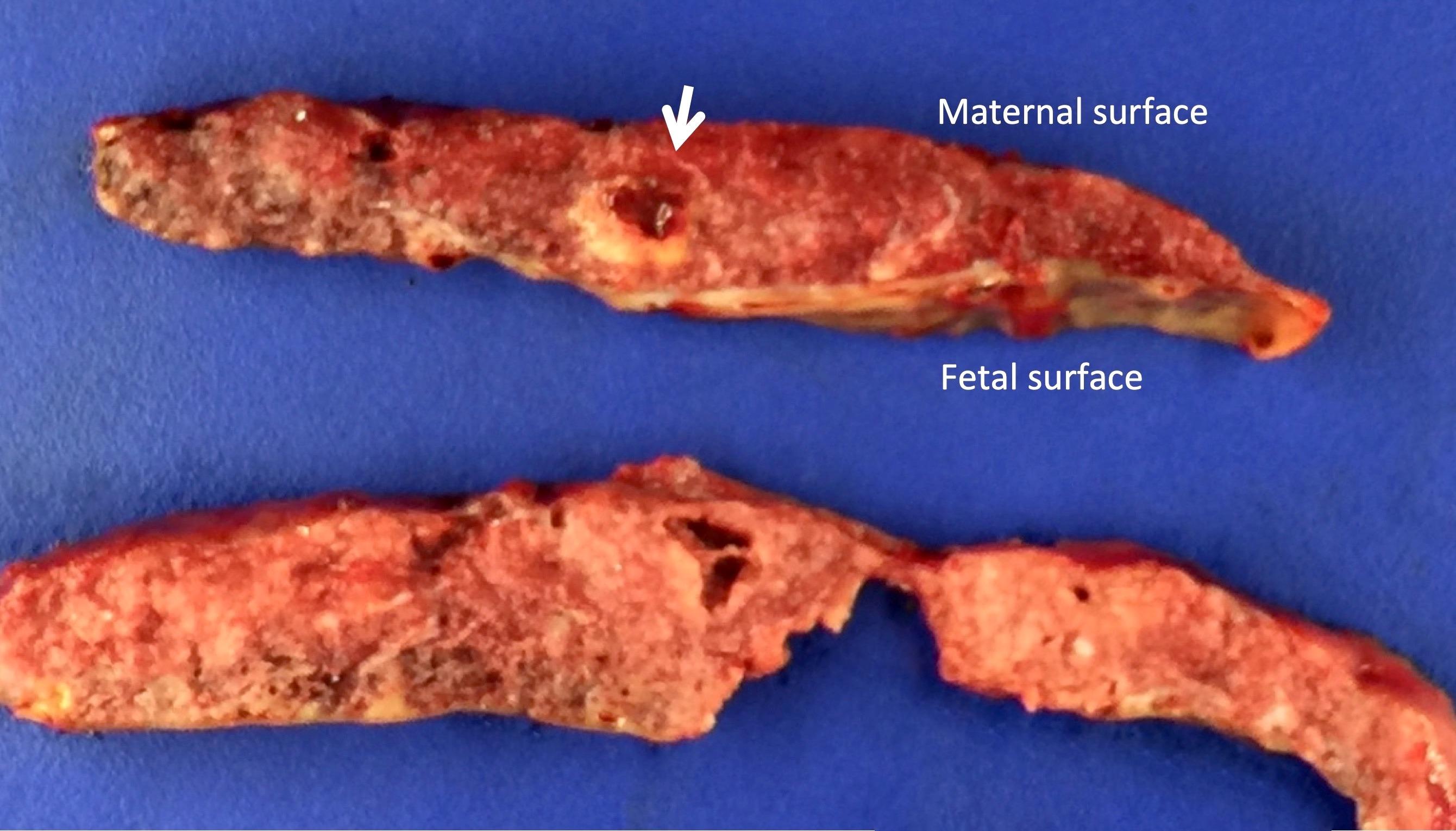 Infarction hematoma