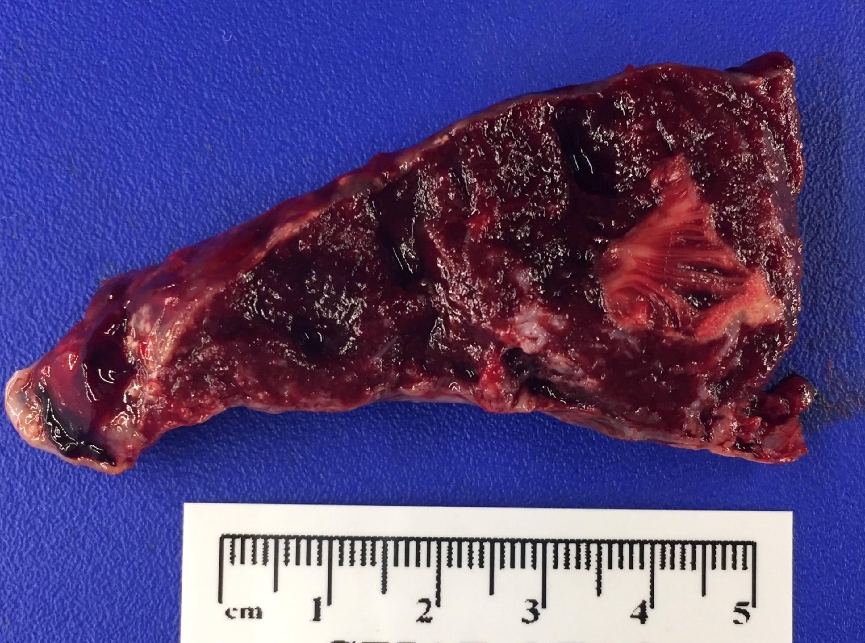 Intraplacental hematoma