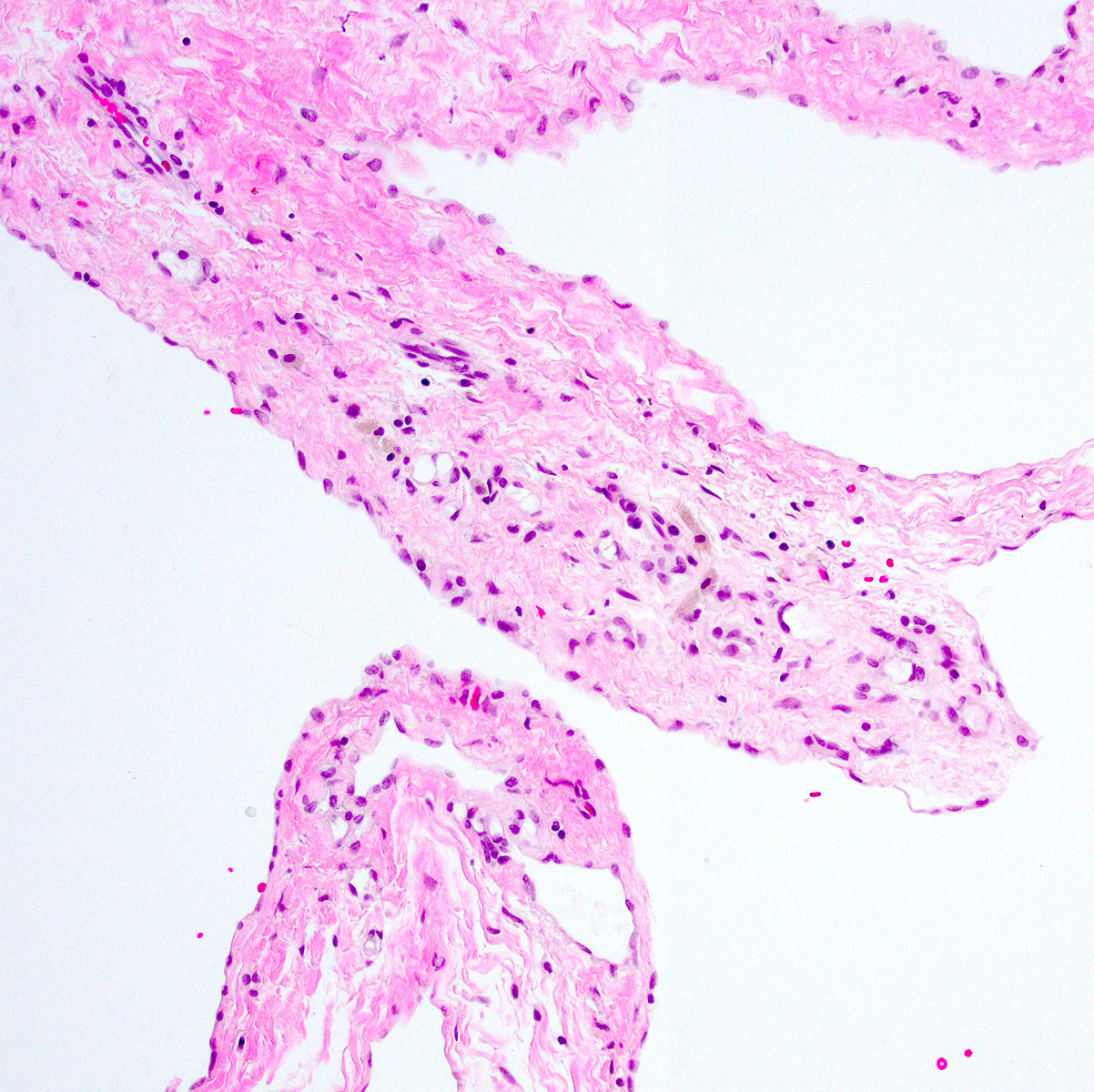 Microscopic adenomatoid proliferation