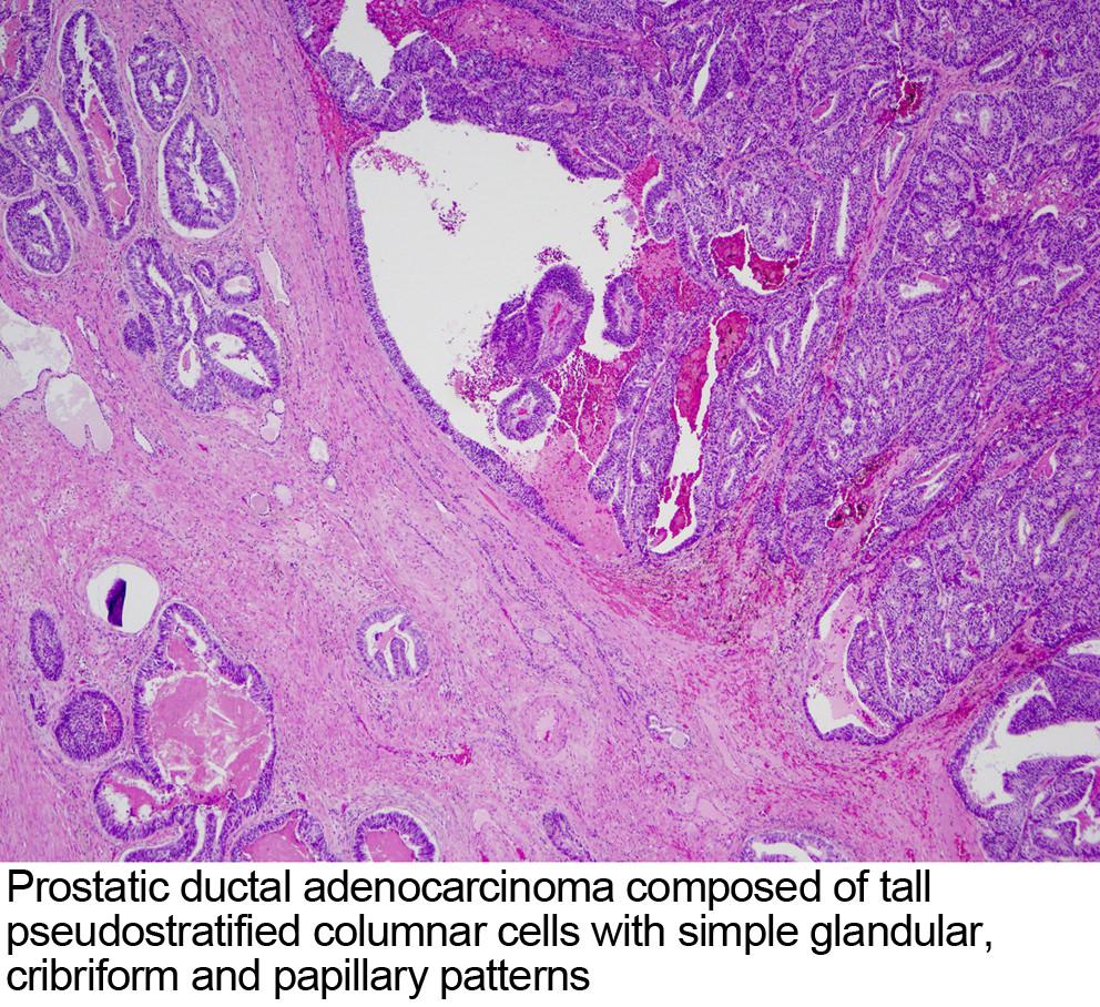 prostate cancer pathology outlines immunohistochemistry