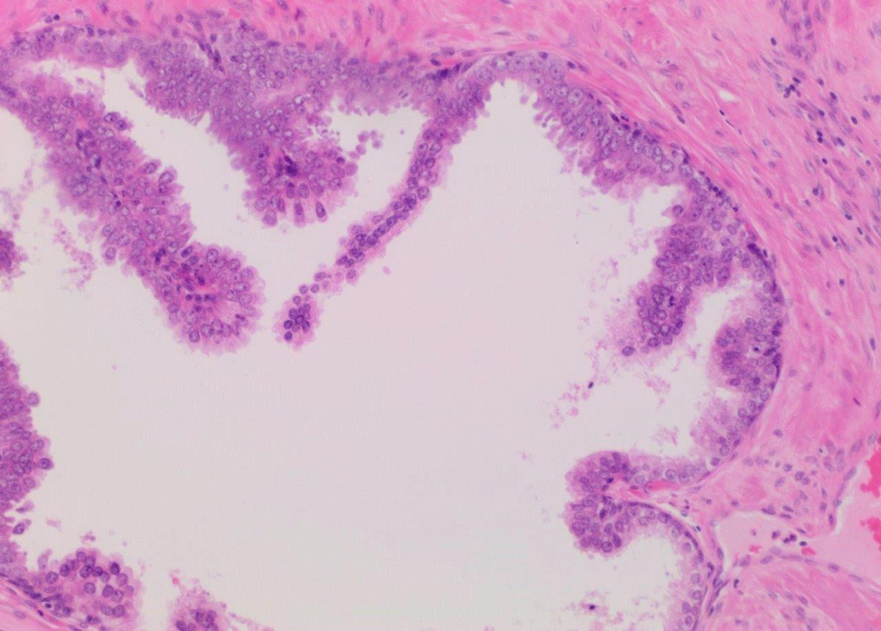 Micropapillary HGPIN