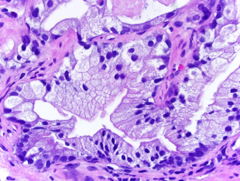 pin prostatae