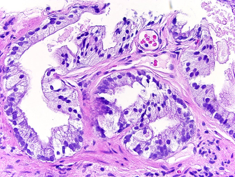 adenocarcinoma acinare prostatico gleason 4+ 4