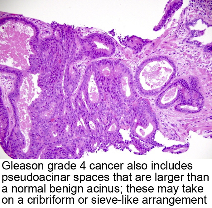 cancer prostate gleason 3+3