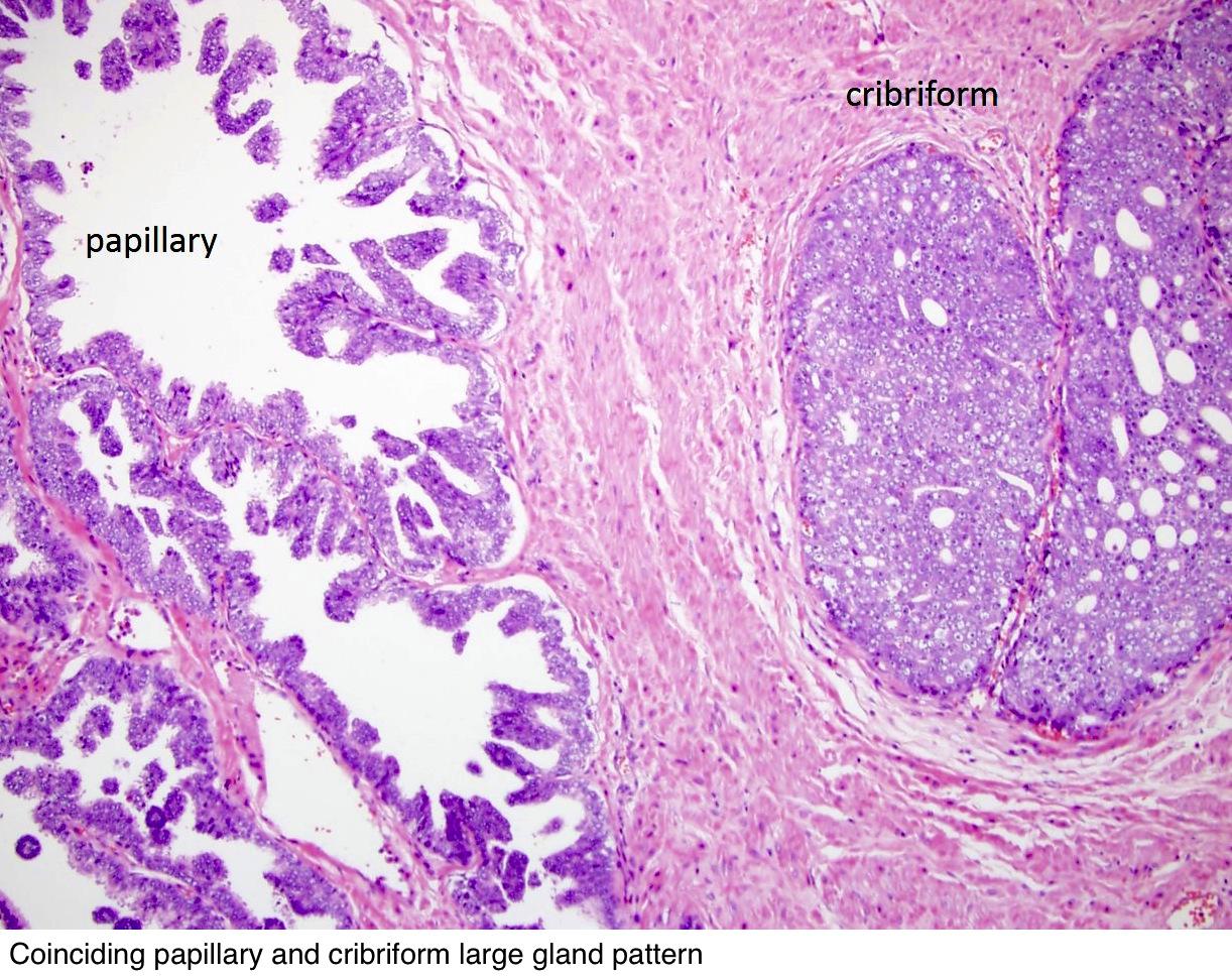 prostate cancer pathology outlines prosztata mirigy tünetei