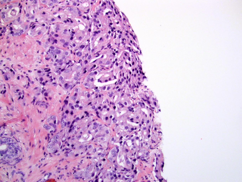 prostate adenocarcinoma gleason score pathology outlines