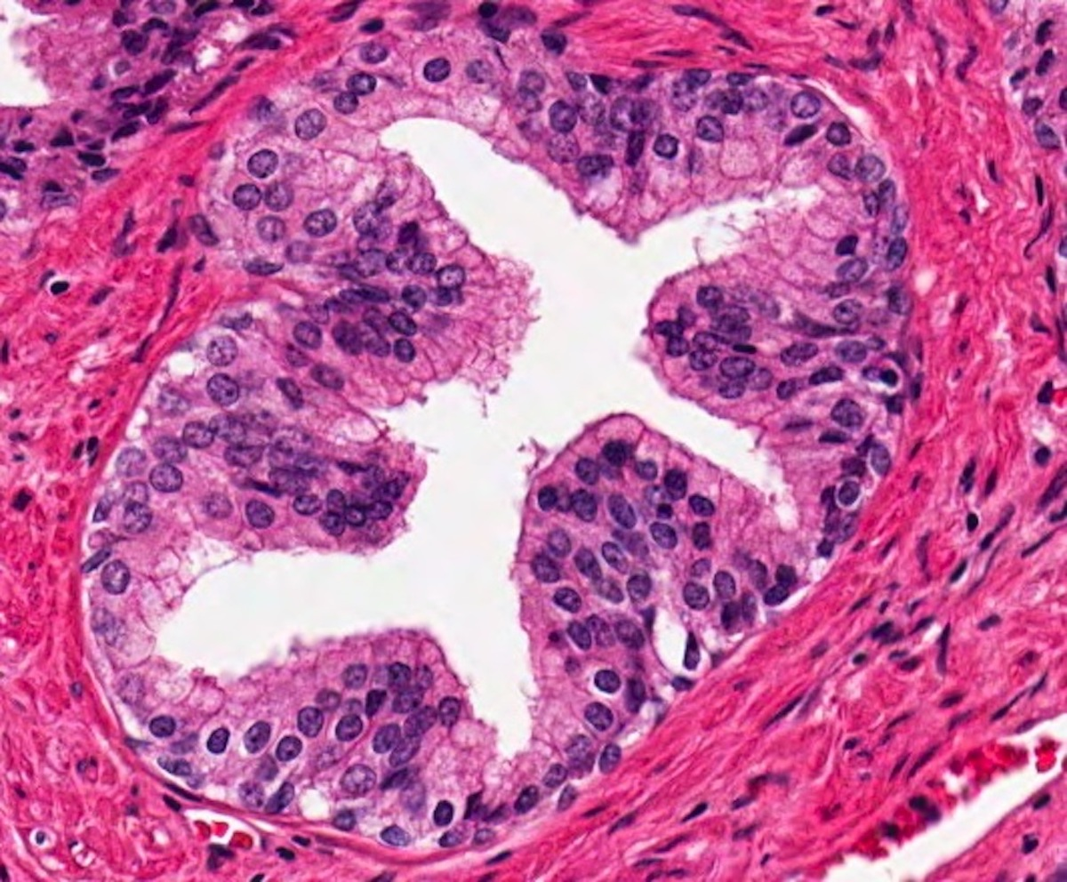 Humán papillomavírus hx icd 10, Papilloma vírus nedir. Hpv szemolcs ecsetelo
