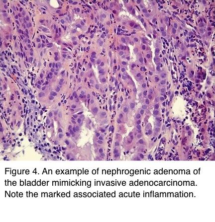 prostatic adenoma pathology outlines