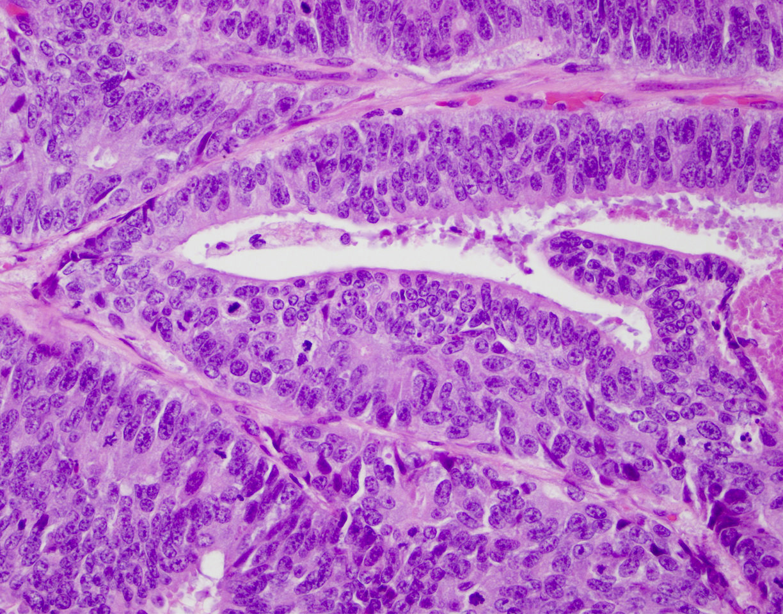 A prosztatitis a bal oldalon fáj