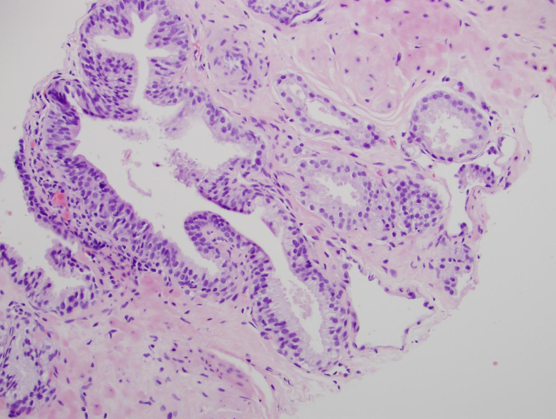 A prosztata adenoma húgyúti elemzésének mutatói