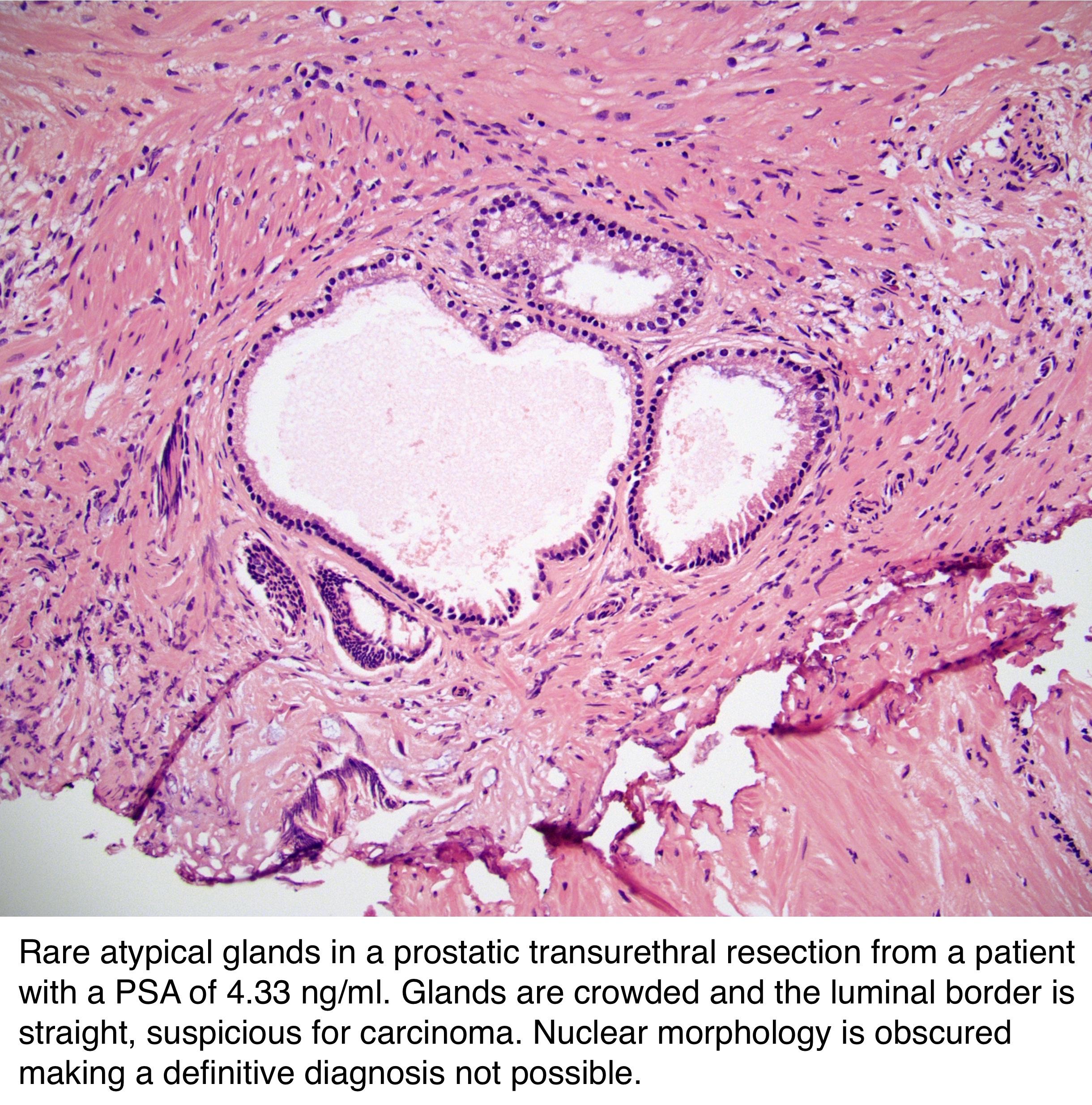 asap prostate biopsy