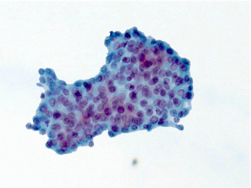 Crowded squamous cells