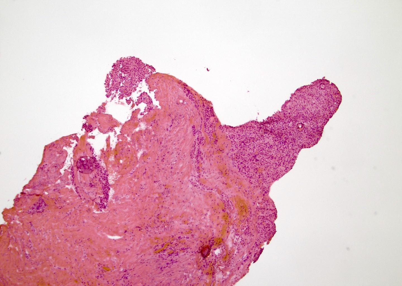 Positive margin for tumor