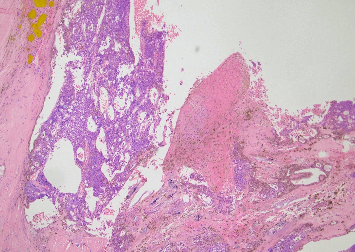 Cystic pattern and hemorrhage
