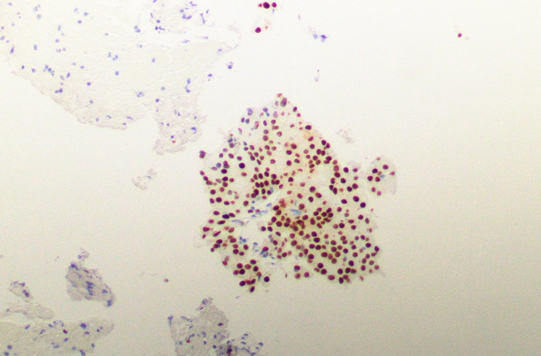 NR4A3 nuclear stain