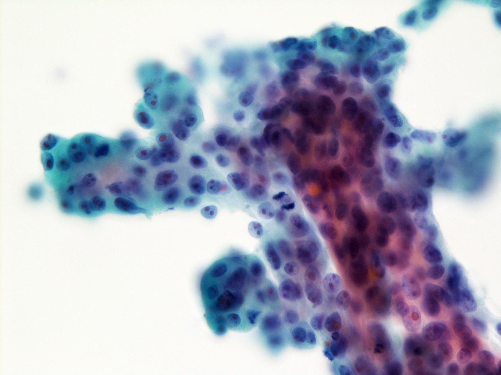 Prominent nucleoli