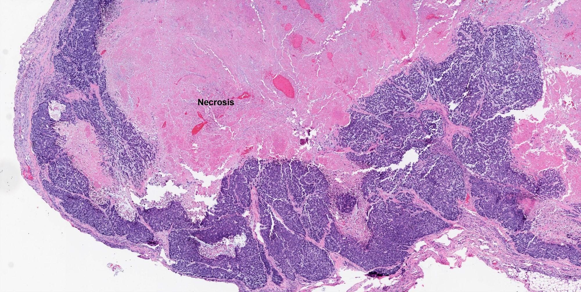 Necrotic hypocellular central zone