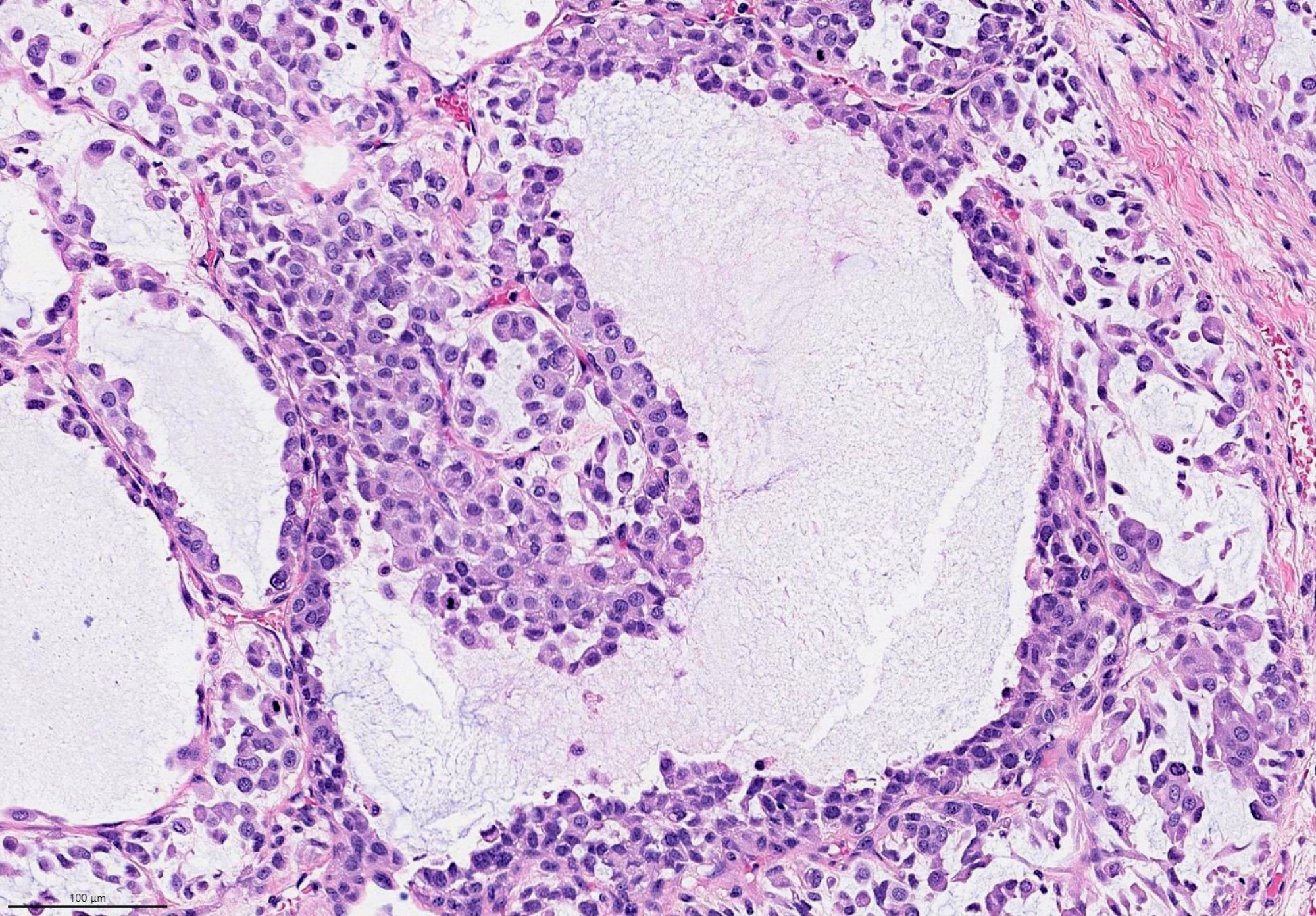 Plasmacytoid features