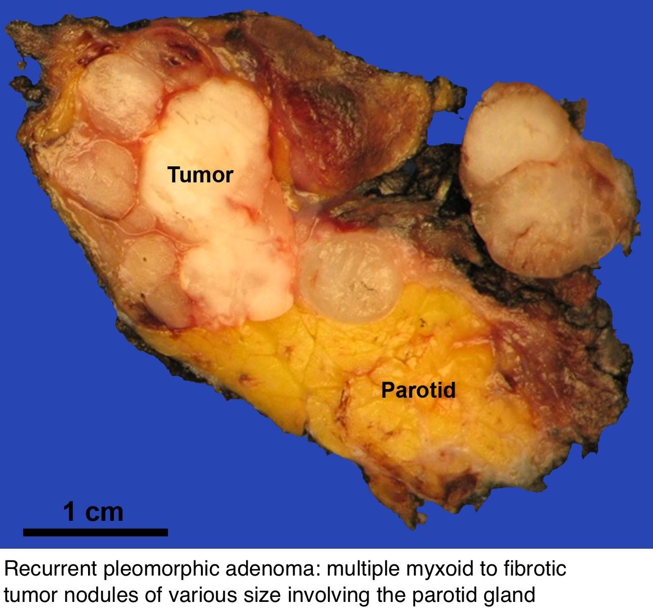 A betegség jelei a prosztatitis férfiakban mi a prostatitis mail