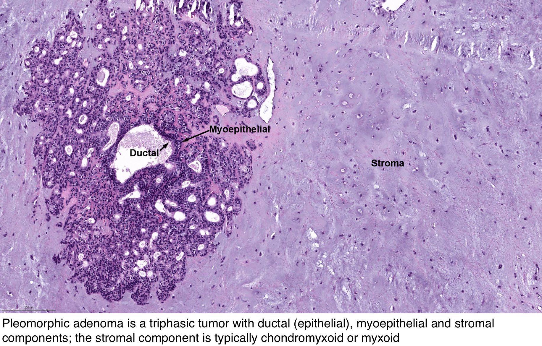 pleomorf adenoma A prosztatitis nem fog fájdalmat adni