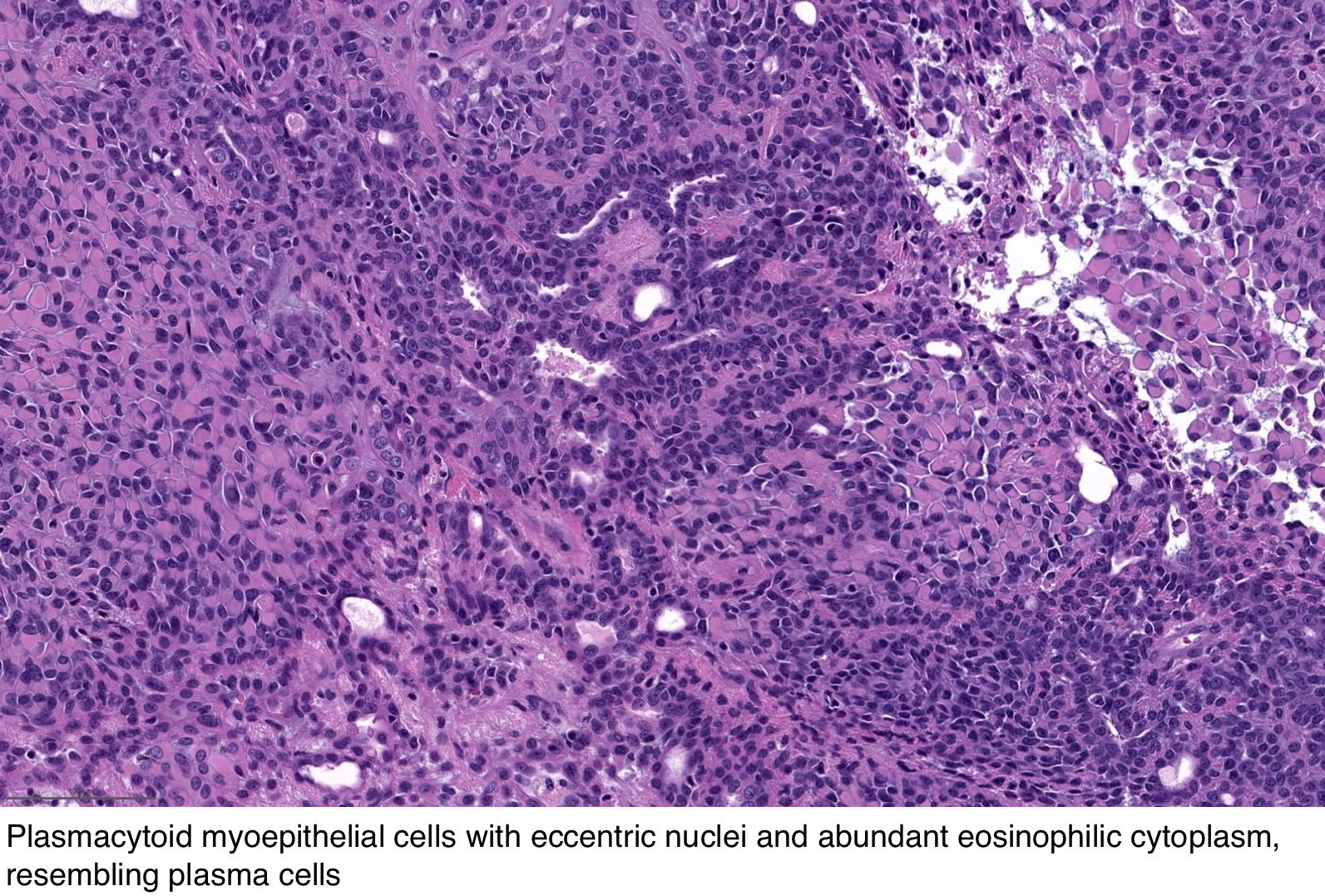 pleomorphic adenoma pathology outlines