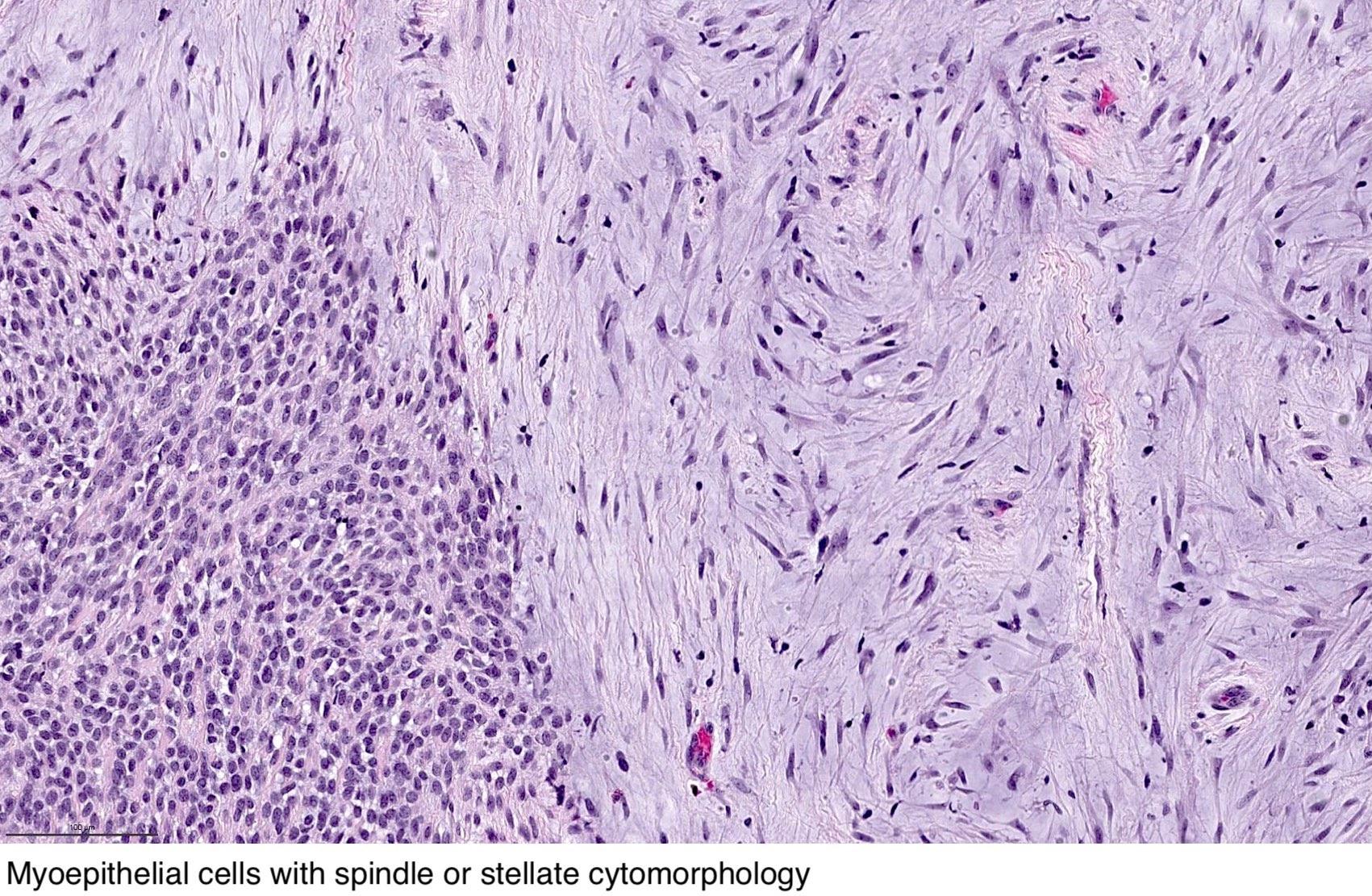 pleomorphic adenoma pathology outlines)
