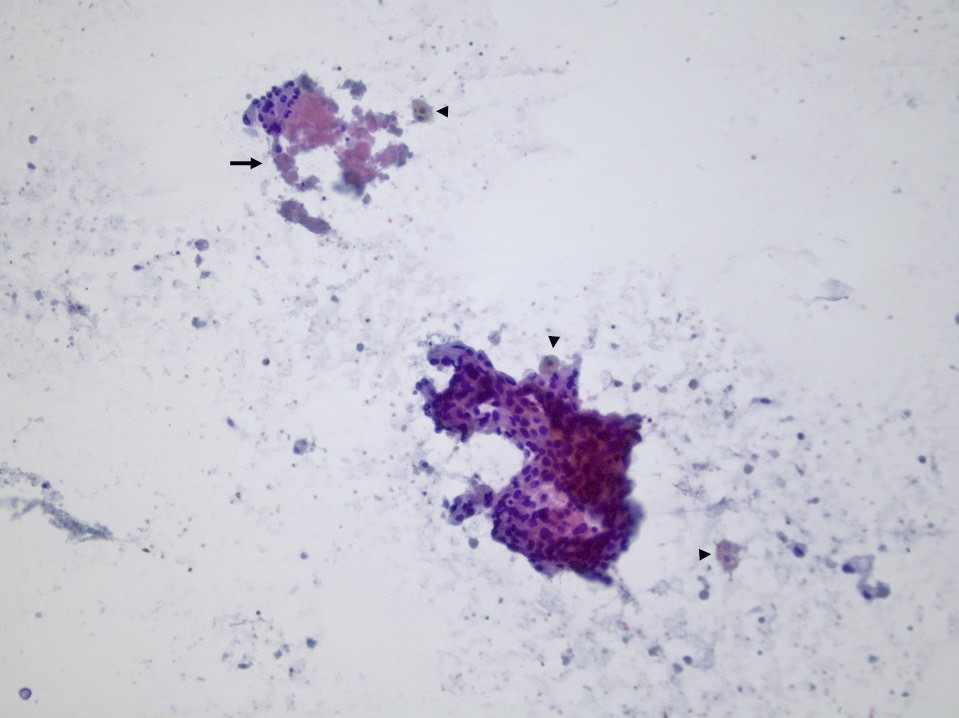 Pap stain