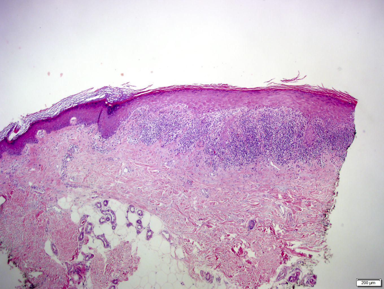 Hypertrophic Lichen Planus